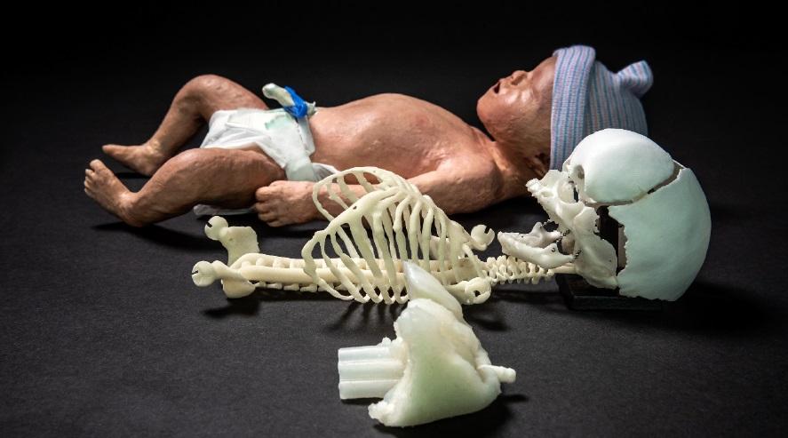 3D-geprinte baby dummy voor betere reanimatietraining