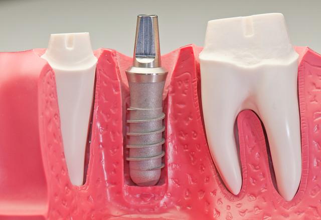 implantaten kaakchirurgie