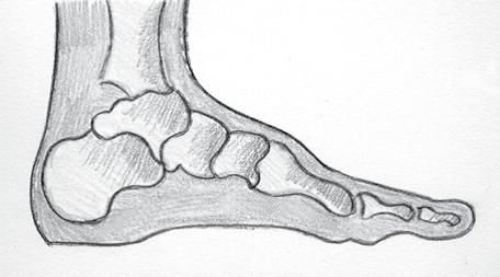 Normale voet MMC