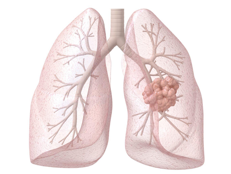 Als je rookt krijg je longkanker: is dat echt zo?