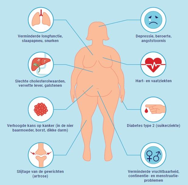 Waarom dik zijn ongezond is: 8 gevolgen van obesitas
