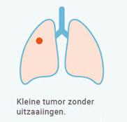 Longkanker stadium 1