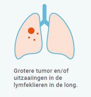 longkanker stadium 2