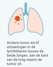 longkanker stadium 3