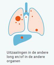 longkanker stadium 4