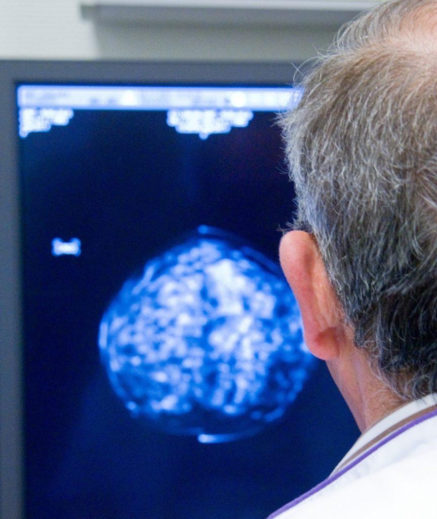 Binnen 24 uur diagnose bij verdenking borstkanker