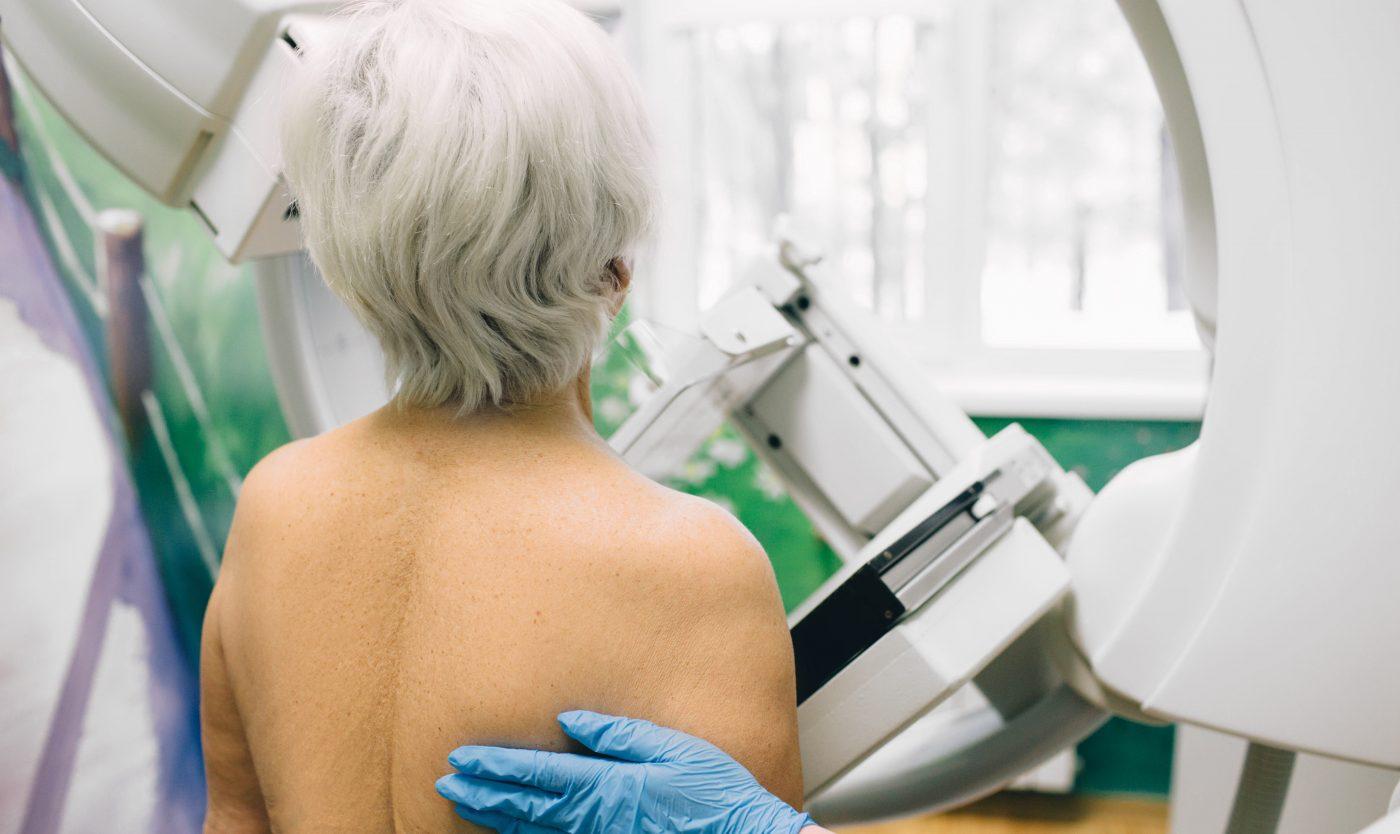 Herstart bevolkingsonderzoek borstkanker